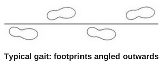 Typical-gait-footprints.jpg