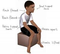 Poor sitting posture in a child with low muscle tone